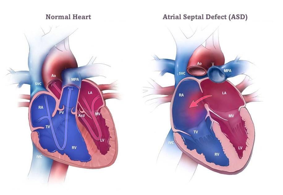 Atrial Septal Defect Acha