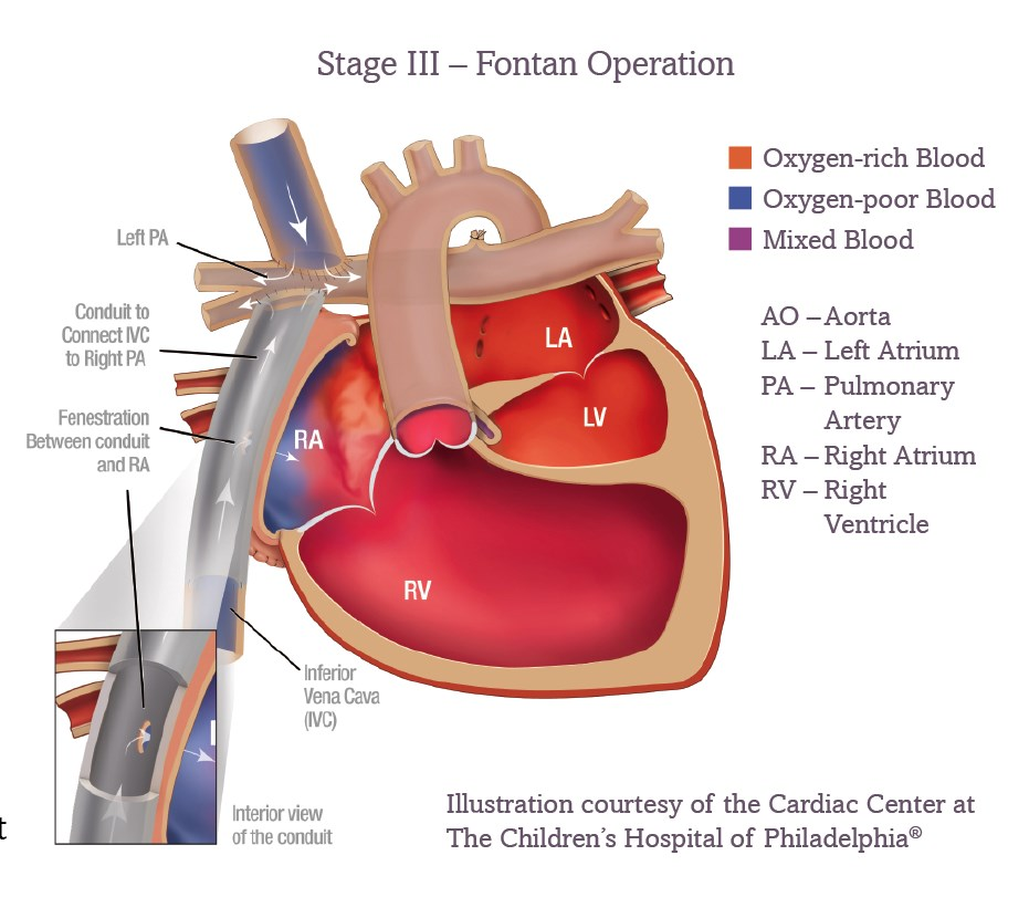Single Ventricle Defects And The Fontan Acha