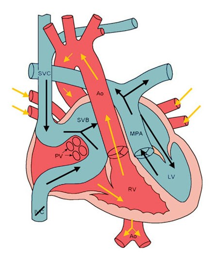 Transposition of the Great Arteries after Mustard/Senning