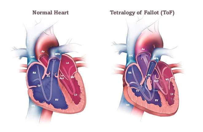 Tetralogy of Fallot - ACHA