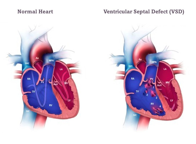 Всд или сердце как отличить
